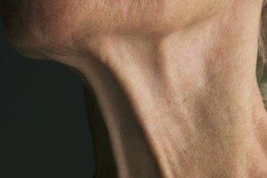 Cómo reafirmar la piel debajo del mentón después de la pérdida de peso