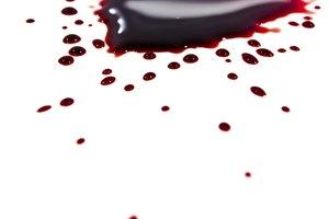Cómo comer si tienes sangre tipo A negativo