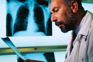 Las causas de las manchas en los pulmones