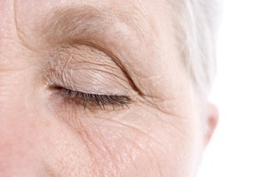 How to Reverse Upper Eyelid Wrinkles