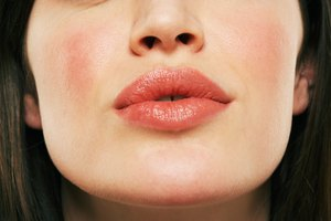 What Causes Dry Skin Around the Mouth?