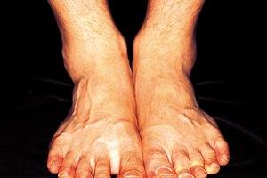 Un dedo del pie hinchado y duro