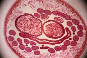 Cuáles son los signos de la presencia de lombrices en la materia fecal