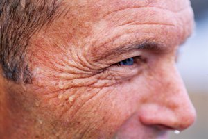 The Best Remedies for Wrinkles & Dark Spots