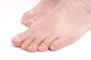 How to Get Rid of Calluses with Aspirin