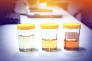 Vitamina B12 y el color de la orina
