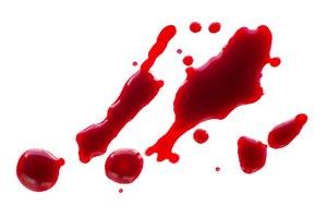 ¿Qué debo comer después de haber perdido sangre?