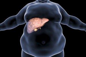 La dieta para la hepatomegalia