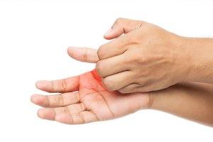 Qué causa que se caiga la piel en las manos