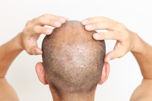 How to Moisturize a Bald Head