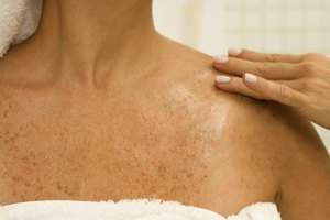 ¿La vitamina E ayuda a eliminar las manchas oscuras de la piel?