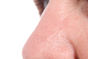 Cómo deshacerse de las arrugas en la nariz
