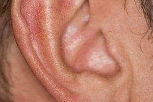 Ejercicios para destapar los oídos