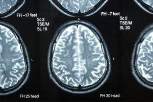Ejercicios cerebrales para la afasia de Broca