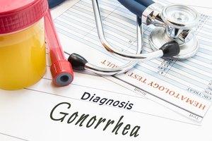 Gonorrea: síntomas y tratamiento