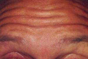 How to Prevent Forehead Wrinkles