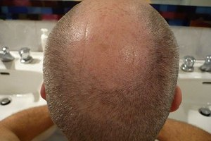 How to Cut a Bald Man's Hair Better Than a Barber