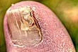 How to Get Rid of Toenail Fungus Naturally
