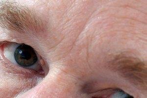 How to Get Rid of Sunken Eyes & Circles