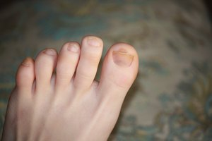 How to Clear Up Dark Toenails