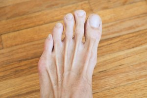 How to Remove Dark Spots From Toes