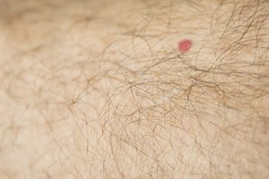 How to Get Rid of Warts on Your Leg