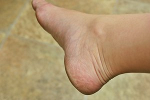 How to Remove Hard Skin From Feet