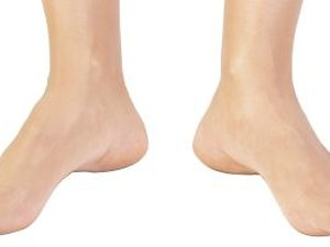 How to Strengthen Your Feet to Prevent Injury