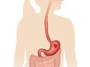 How Is Protein Absorbed by the Digestive Tract?