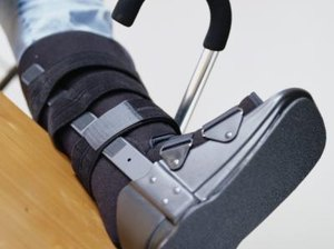 Climbing Stairs With a Broken Foot