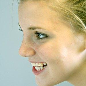 Grants for Orthodontics