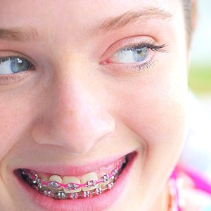How to Get Free Braces