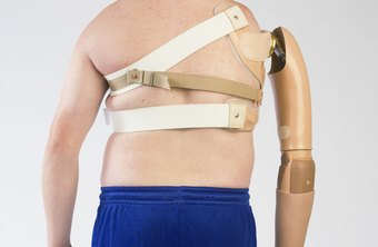 Harnesses wrap around the upper body to secure an arm prosthesis.