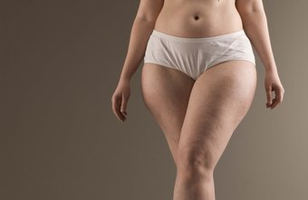 Cellulite results from genetics, weight gain or a combination of the two.