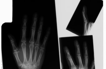 Finger fractures are diagnosed with x-rays.