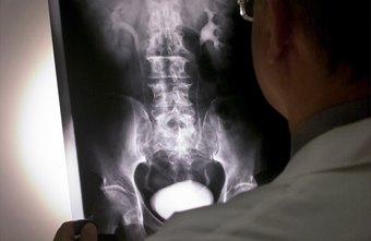 It is not clear if getting an x-ray increases your risk for prostate cancer.