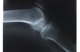 Radiologic techs can show doctors the condition of patients' bones.