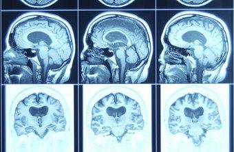 Hazards of Being a Neurologist | Chron com