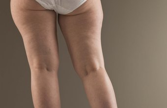 The outer thighs are one of several trouble zones you might like to slim down.