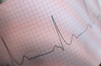 An EKG often confirms or rules out a diagnosis of heart attack.