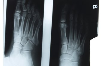Feet have a complicated anatomy and require specialized care.