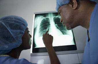 Radiographers furnish images to help surgeons treat lung conditions.