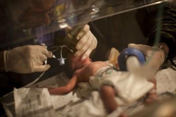 Pre-term infants usually require help to breathe, at first.