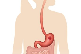 Digestive Enzymes Produced by the Pancreas