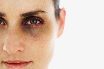 Domestic violence could include physical, sexual or emotional abuse.