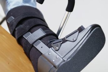 A broken foot makes climbing stairs a challenge.