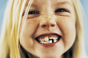 Nutrition to Prevent Tooth Breakage