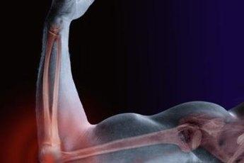 Phosphorus keeps your bones strong.