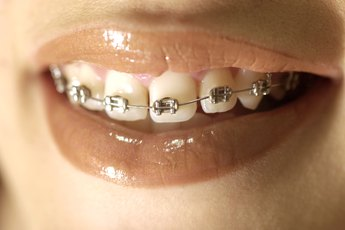 Do Braces Count as an Itemized Deduction on Taxes?