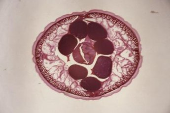 A roundworm is a type of nematode (a sort of worm).